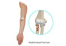 Radial Head Fractures of the Elbow